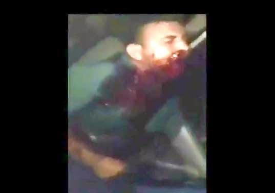 Agoniza después de Recibir un disparo en la Cara