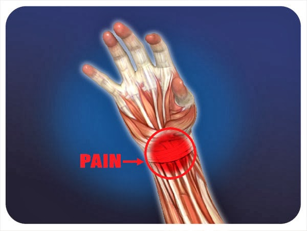 Clinical Pearl: Preventing Wrist Pain and Carpal Tunnel Issues