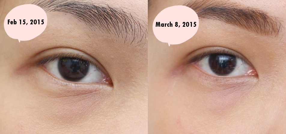 Before and after using Benefit Puff Off! Instant Eye Gel