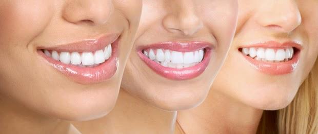 13 Tips Merawat Kesehatan Gigi
