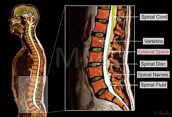 Annotated Color MRI Lumbar Spine Anatomy Epidural Space