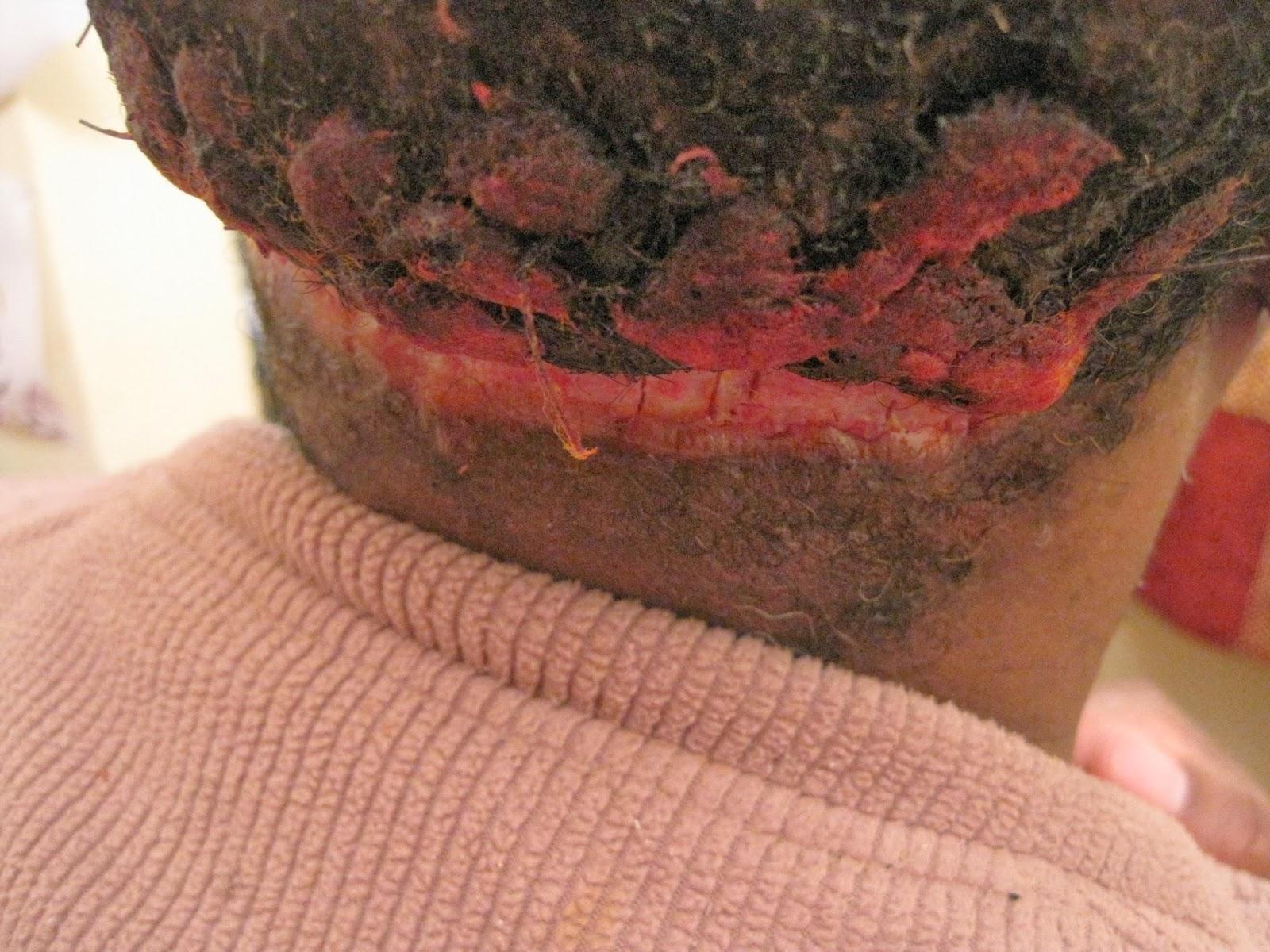 acne keloidalis nuchae cure