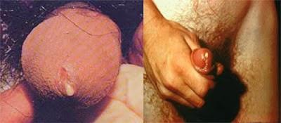 Penyakti Kencing Nanah atau Gonore