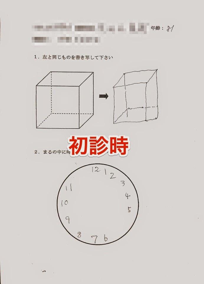 時計描画テストと透視立方体模写テスト
