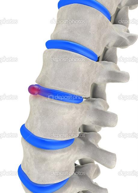Corset premium beautiful boleh mengurangkan sakit belakang akibat slipped disc from adibah and hanis haizi