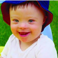 Ciri-ciri Wajah Anak Autis
