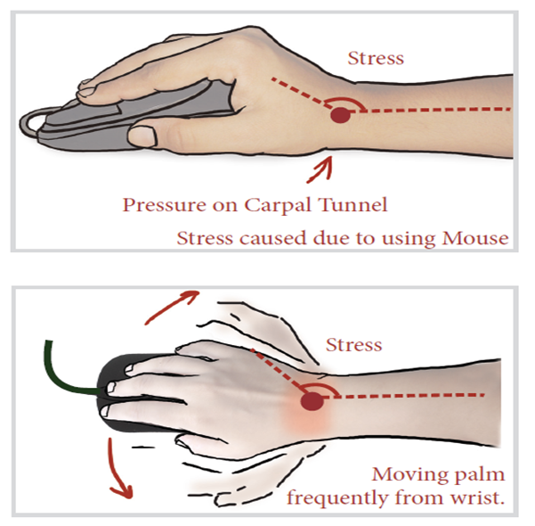Un Named If You Have Wrist Pain