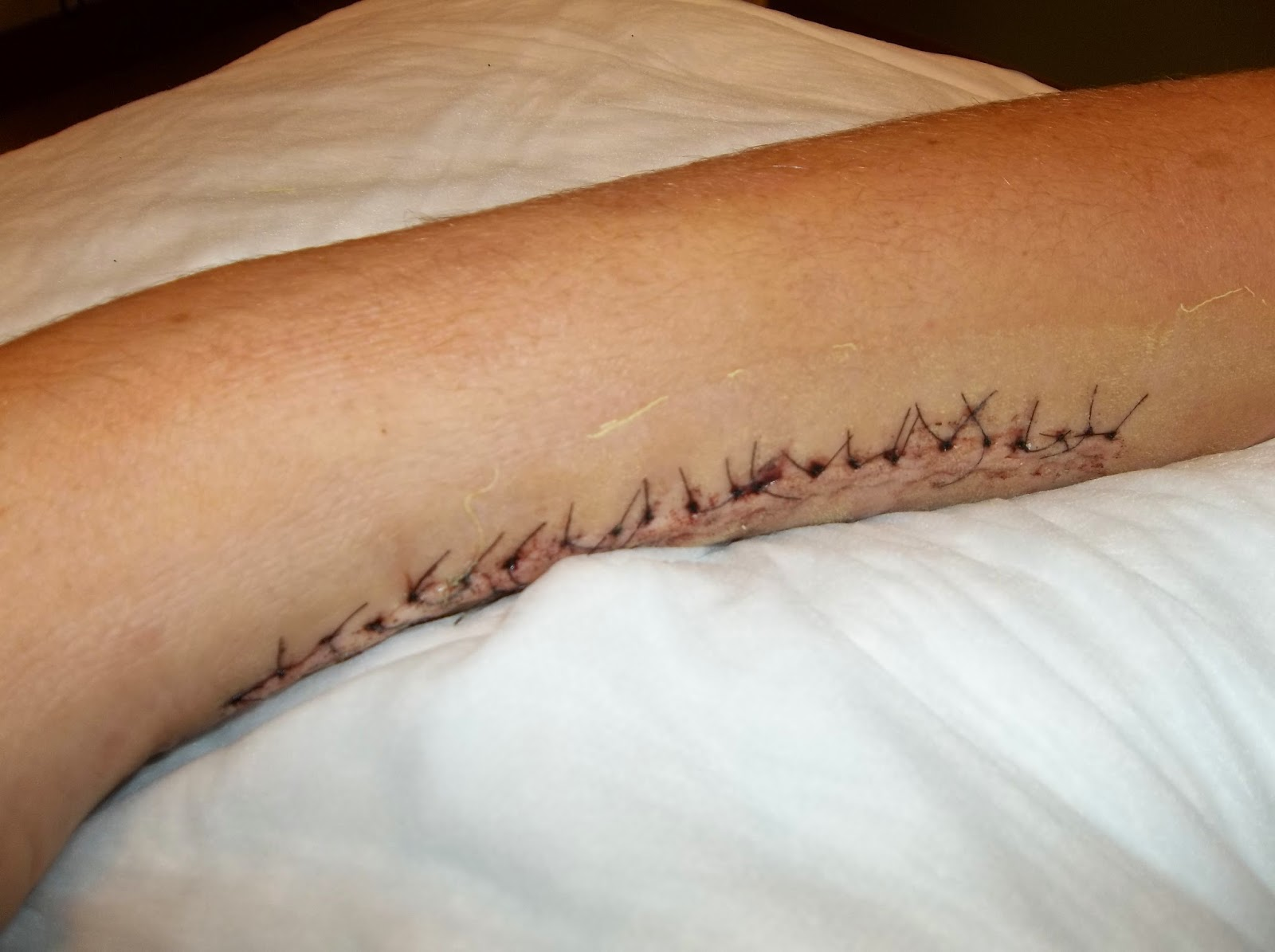 Cut Wrist Stitches