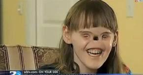 Cette adolescente est née sans yeux et nez