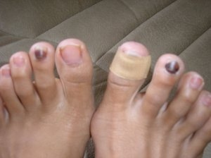 Black Toenail Causes