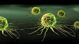 Drug Combination Shrinks Pancreatic Tumors