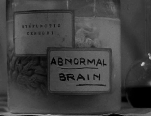 abby-normal-brain.png