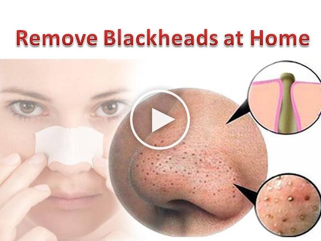 Лицо без черных точек в домашних условиях