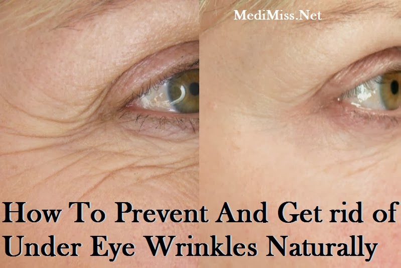 under eye wrinkles how to get rid of