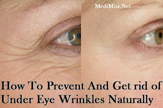 How To Prevent And Get rid of Under Eye Wrinkles Naturally