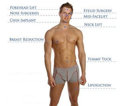 липосакция у мужчин до и после