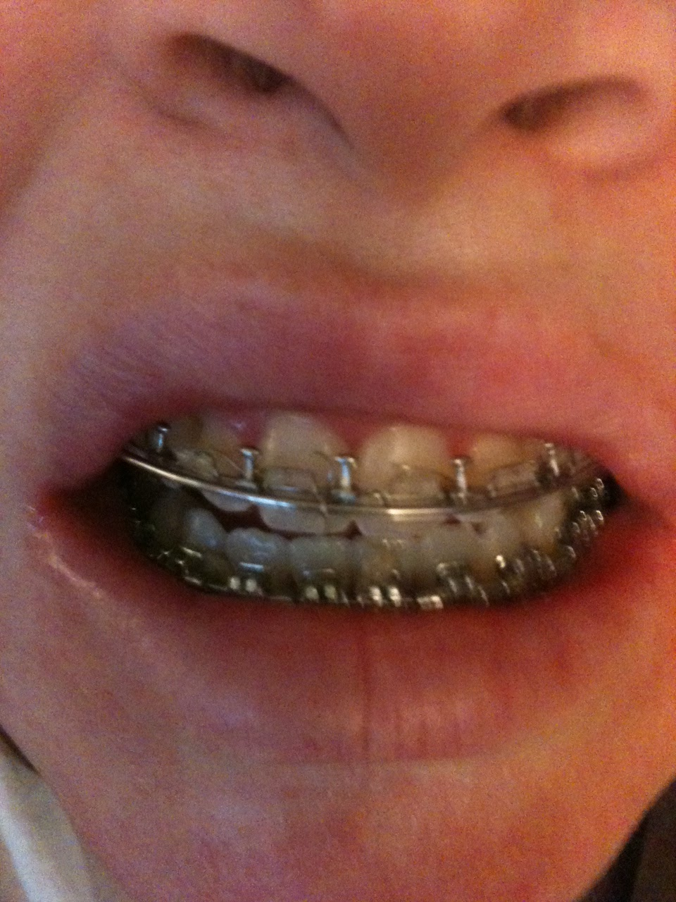 Smile! braces and double jaw surgery... my journey.