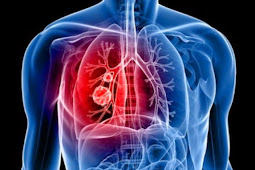 10 Bahaya Menjadi Perokok Pasif