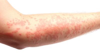 Dermatitis atau Alergi Kulit