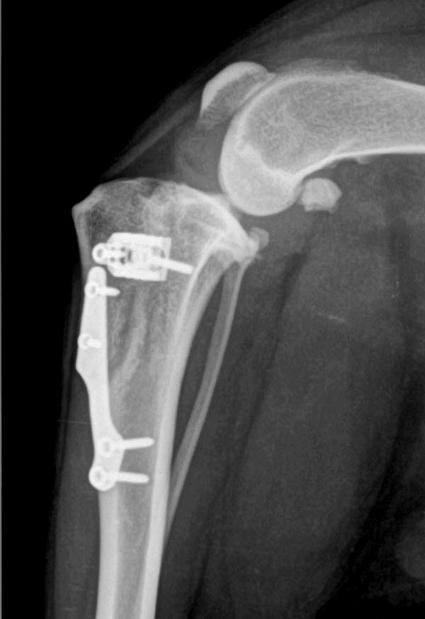 TTA de rodilla, vista mediolateral ya cicatrizada