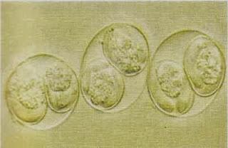 Trứng cầu trùng
