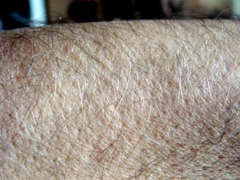 Adesivo De Balão ~ El fino pelo corporal humano y el mito de los residuos evolutivos inútiles SEDIN NOTAS y RESE u00d1AS