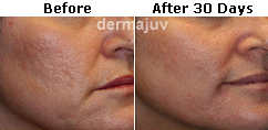 Evening primrose oil acne before and after