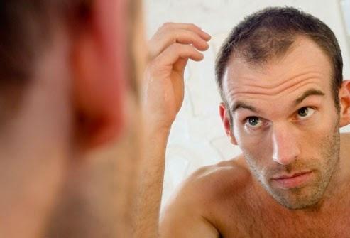 Tại sao nam giới bị rụng tóc nhiều