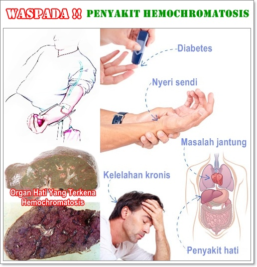 Pengobatan Herbal Hemochromatosis