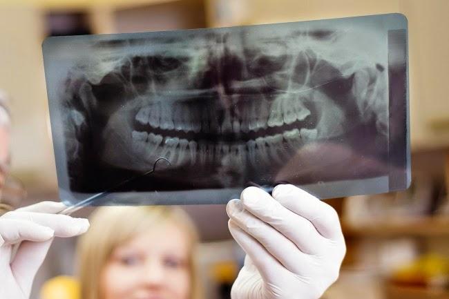 Saintis temui cara tumbuhkan kembali gigi penuh menggunakan laser