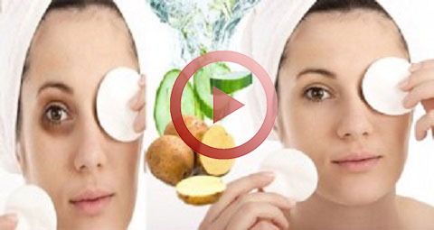 How To Get Rid Of Dark Circles Forever