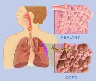 penyakit paru-paru