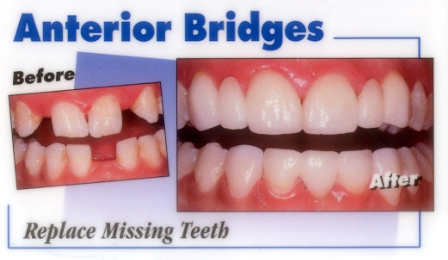cantilever bridge dental