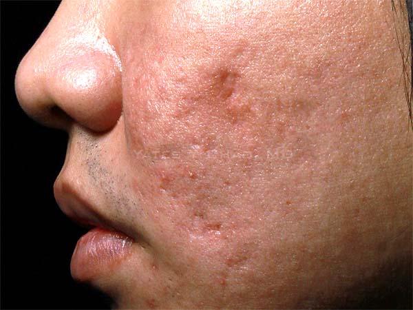 穿刺切除青春痘疤經常造成難看的狗耳變形和更糟糕的縫線疤痕