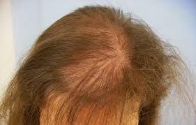 Caida del pelo en mujeres lactantes