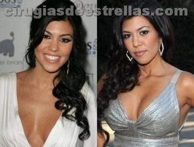 kourtney kardashian antes y después