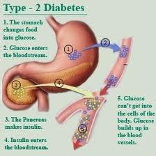 Obat Untuk Penyakit Gula