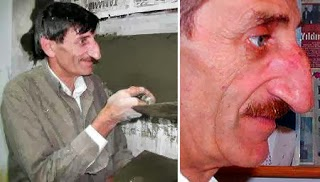 Mehmet Ozyurek, born in Turkey in 1949, has been confirmed as the owner of the world's longest nose.