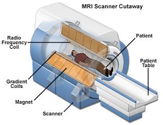 MRI mendiagnosa stroke