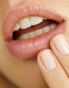 herpes labial cinco