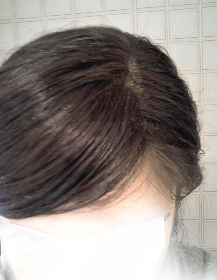 Por qué caen los cabellos en las manos