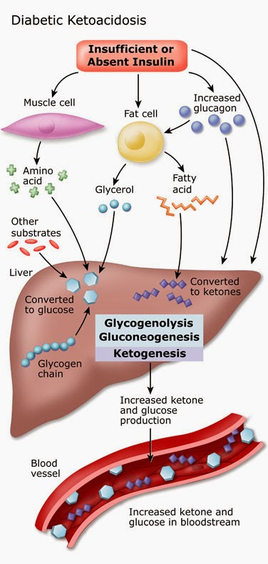 diabetic ketoacidosis treatment