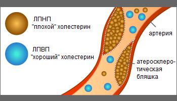 какой бывает холестерин в крови