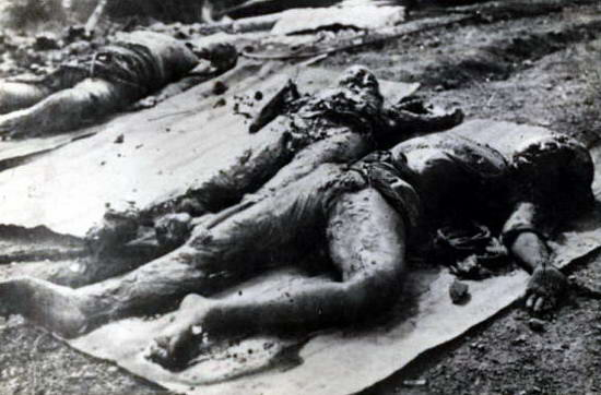 Foto - Foto Pasca Bom Atom Hirosima 1945 Terungkap