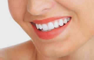 Bagaimana Cara Memutihkan Gigi? Ikuti Cara Ini