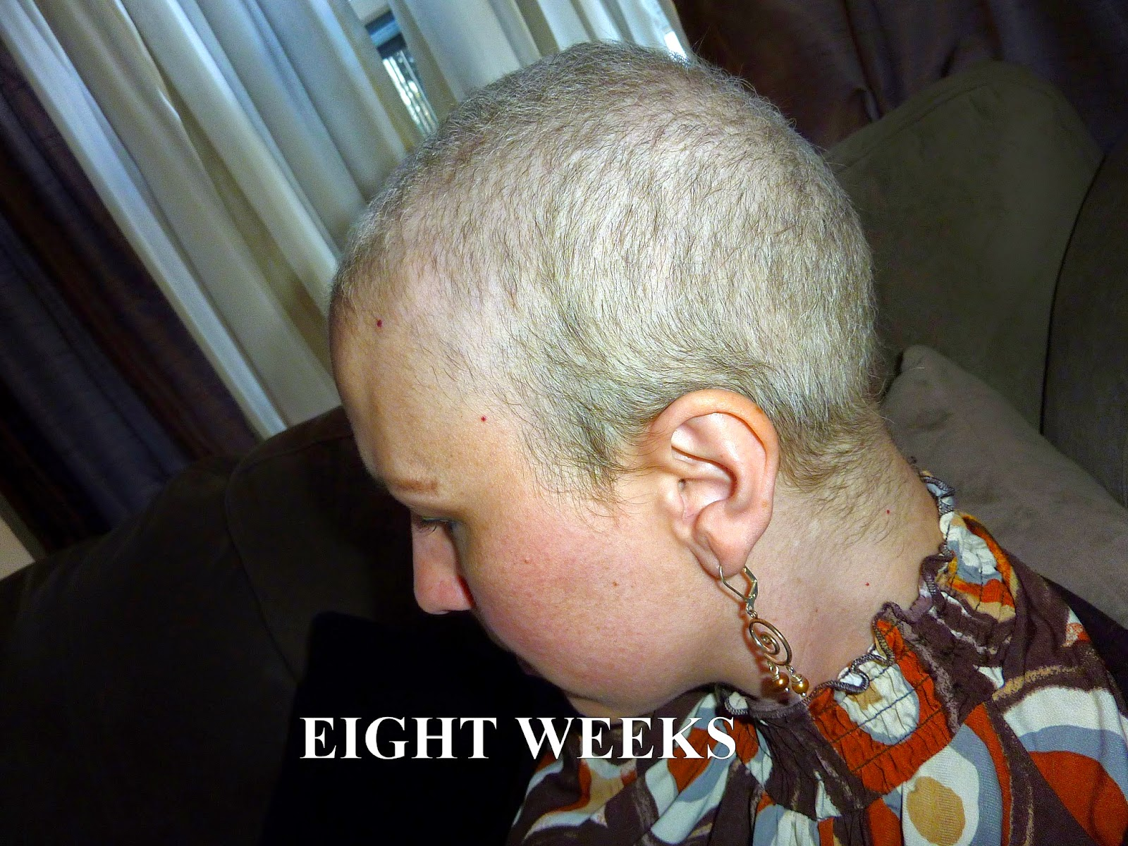 Anncredible: Hair Growth Progression after Chemo- Six