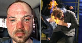 Mágico que teve rosto queimado por apresentador diz que irá processá-lo