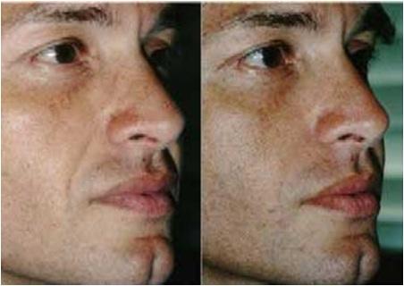 colageno pele antes e depois