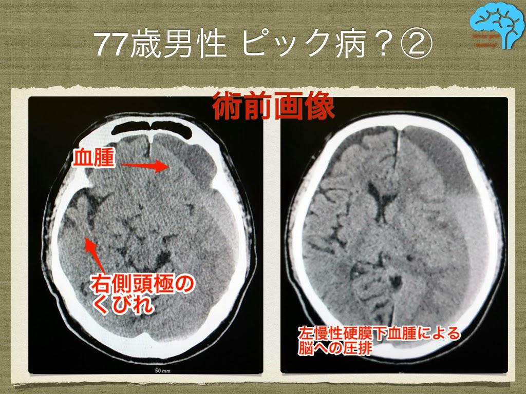 慢性硬膜下血腫術前画像
