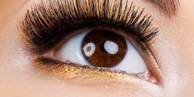 Kesehatan Mata Penyebab Kebutaan
